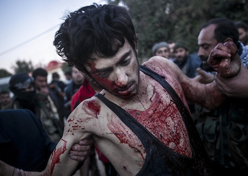 A wounded Free Syrian Army fighter / AP