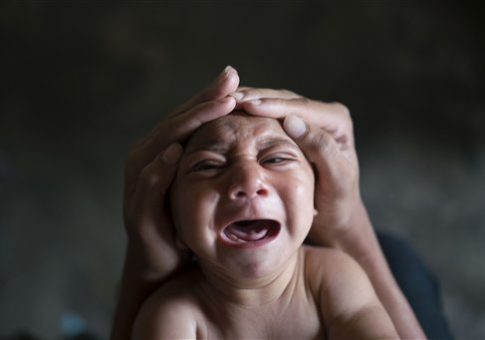 Jose Wesley, who was born with microcephaly and screams uncontrollably for long stretches, in Brazil, Jan. 30, 2016 / AP